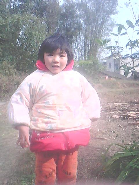一个四岁烧伤女孩的生死经历