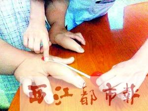 手指粗如幼童胳膊图片