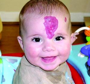 胎记增生了怎么治疗
